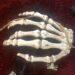 Knogle hånd